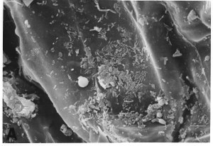 Salud, calidad del suelo y diversidad microbiana (1 parte)