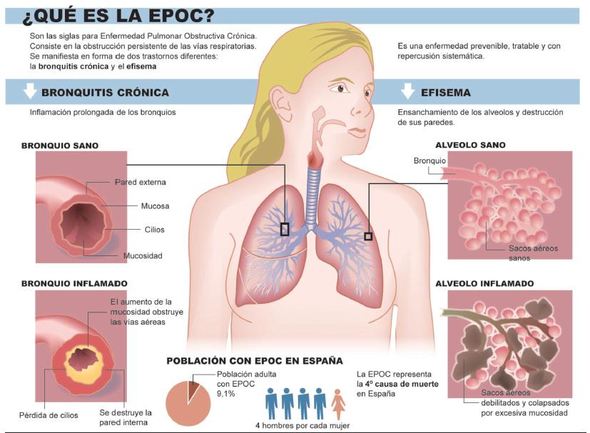 EPOC: más del 80% de los pacientes son fumadores o exfumadores